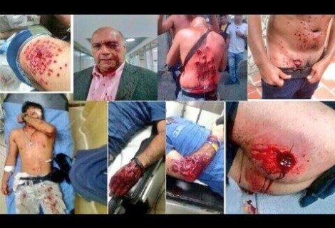 https://ladoblemoral.com/2014/02/18/la-doblemoral-con-las-protestas-en-venezuela-y-ucrania-fascistas-en-gamonal-heroes/
